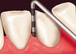 Parodontose Früherkennung Zahnfleisch Taschentiefe