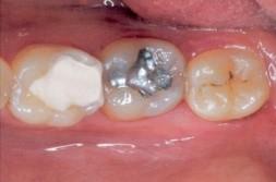 Zahnfüllungen GIZ und Amalgam